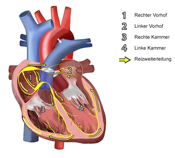 Rhythmologie Aargau :: Invasive Elektrophysiologie :: Nicht ...